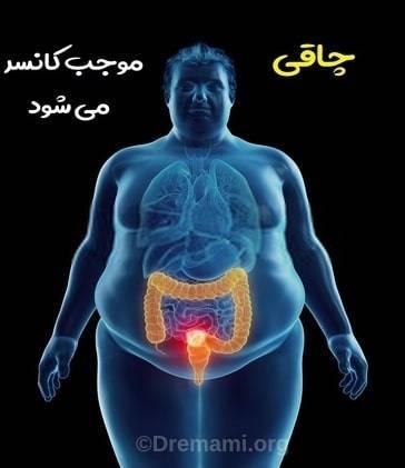 چاقی موجب کانسر می شود