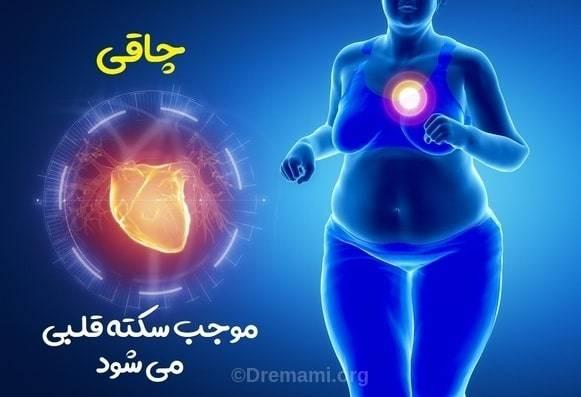 چاقی موجب سکته قلبی می شود