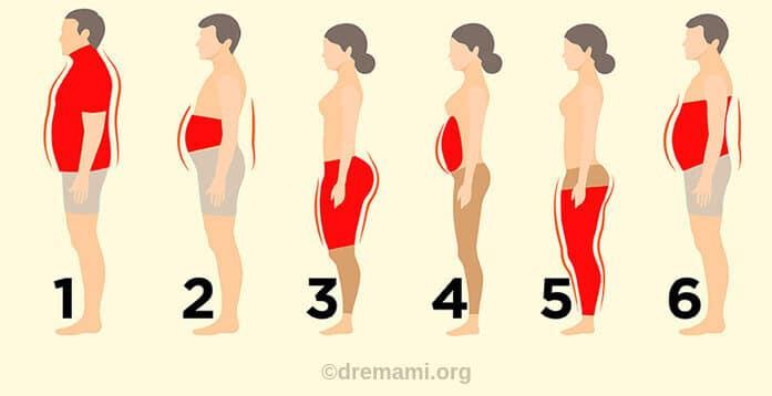 انواع متخلف چاقی