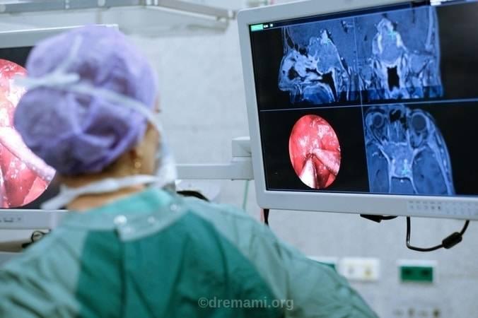 عمل جراحی لاپاراسکوپی کیست تخمدان بانوان