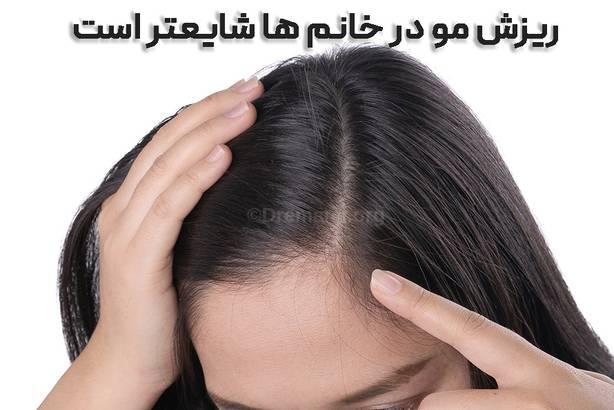 ریزش مو بعد از اسلیو معده در خانمها شایعتر است