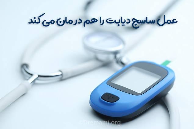 این عمل دیابت نوع 2 را درمان می کند