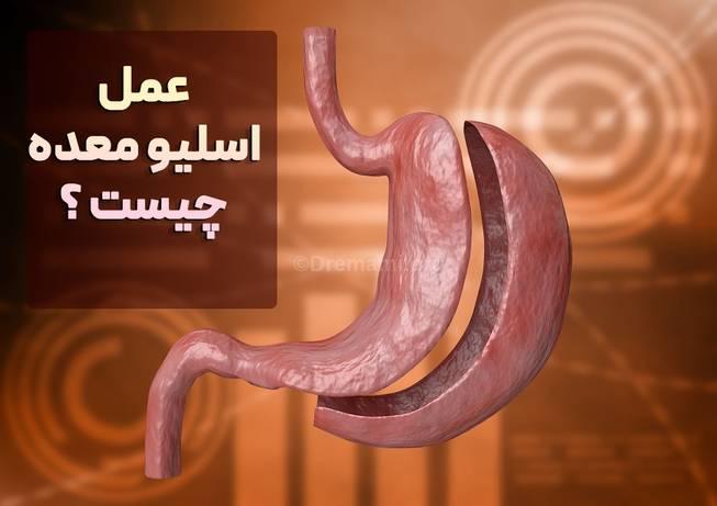 عمل جراحی اسلیو معده در مشهد