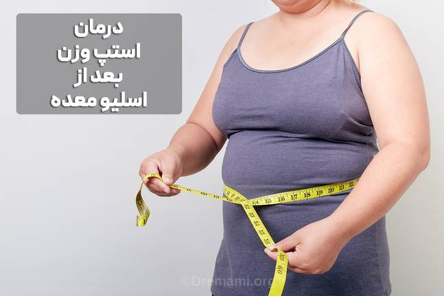 درمان استپ وزن بعد از عمل